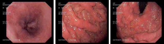 Thickened irregular mucosal folds with poor distensibility involving the fundus and body of the stomach
