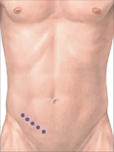 laposcopic anal rsd several surgeries after