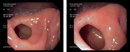Rectal polyp. Polypectomy done using diathermy. (Endo cut - Q mode)
