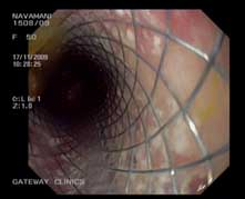 Oesophageal stent. (Palliative treatment for inoperable Cancer Oesophagus)