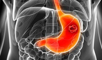 Congestive gastropathy